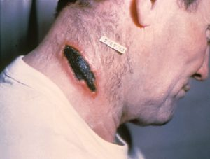 Cutaneous_anthrax_lesion_on_the_neck._PHIL_1934_lores